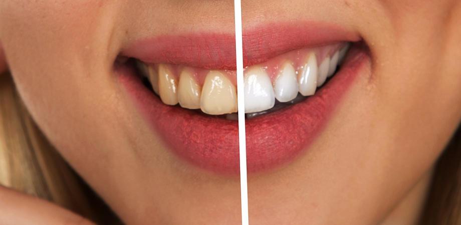 Higiena zębów do podstawa